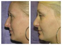 Rhinoplasty photos before and after 2 weeks