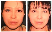 Rhinoplasty photos before and after