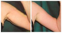 Arm lift - Brachioplasty - before and after photo