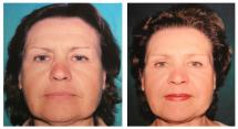 Botox injections - before and after