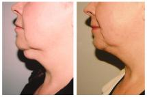 Chin Liposuction - photo Before & After