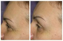 BOTOX photos before and after