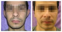 Otoplasty - photo Before and After