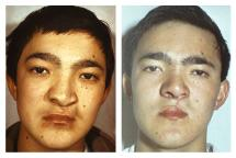 secondary rhinoplasty and cheiloplasty cleft upper lip Reconstructive Surgery